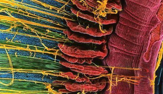 美しすぎる電子顕微鏡写真2