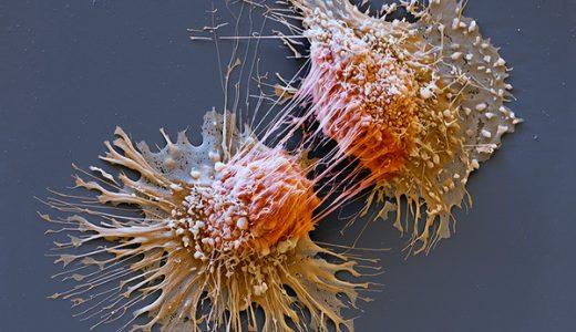 【閲覧注意】癌細胞画像まとめ【ぶつぶつ】