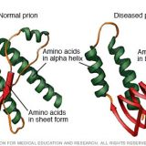 プルシナーの実験「異常プリオンによって脳の損傷を確認」
