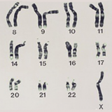染色体異常と減数分裂-ダウン症候群・ネコ鳴き症候群-
