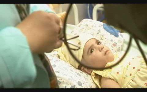 双子の頭が結合したまま生まれてきた結合双生児の女の子Manar Magedの物語
