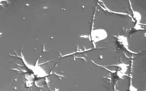 これが脳の中でリアルタイムで起こっていると思うと不思議。ニューロンの軸索が伸びる様子を撮影してみた