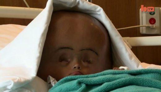 頭が通常の3倍に膨張してしまった生後18カ月の水頭症の赤ちゃん