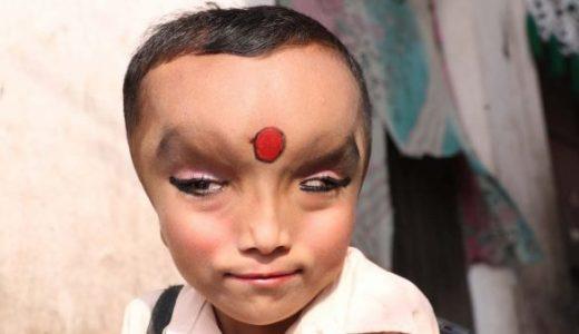 額が膨らんだ状態で生まれた男の子がインドで神として崇められている