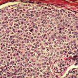 癌はどのようにして生じる?-がん遺伝子・がん抑制遺伝子p53-