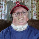 ナーガー症候群(前軸性顔面肥厚症)の男性にインタビューしてみた