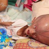 フィリピンで生まれた水頭症の赤ちゃんとお母さんの日常を撮影してみた