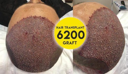 【超閲覧注意】植毛手術の様子を撮影してみた【ぶつぶつ】