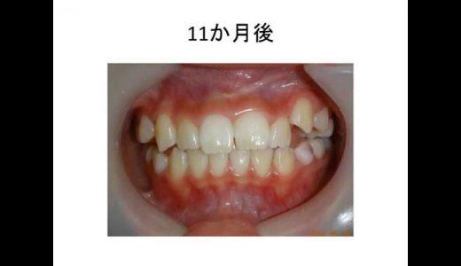 八重歯(乱杭歯)は男性よりも女性に多い