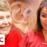 まるで黒い宝石!おばあちゃんの耳の横にある超デカイブラックヘッドを取り除く映像