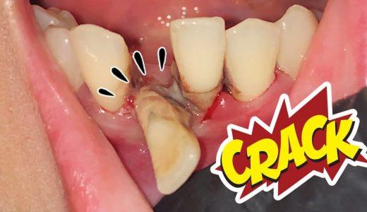 【閲覧注意】歯槽膿漏でめちゃくちゃになった歯茎から歯を抜く映像