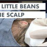 【閲覧注意】頭から2つの豆(粉瘤)を取り除く手術映像