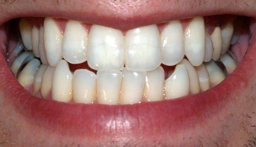 奥歯をくいしばる力はどれくらい?