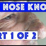 【4000万再生】おじさんの巨大な鼻から巨大なブラックヘッドを次々と搾り取る映像
