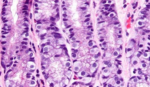 ガストリン細胞(G細胞)の役割とは?