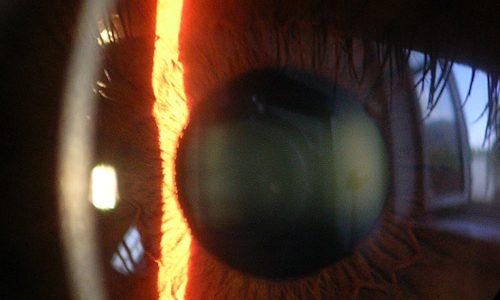 角膜移植で拒絶反応が起こらないのはなぜ?