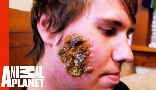 海外旅行注意!リーシュマニア症になって顔面に大きな傷を負った男性の映像