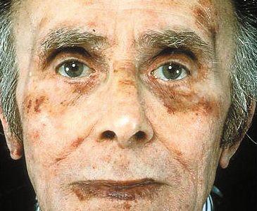 アミロイドーシスとは?その症状と原因