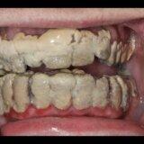 【閲覧注意】20年間歯磨きしないでいたら歯が全て歯石に埋まってしまった画像