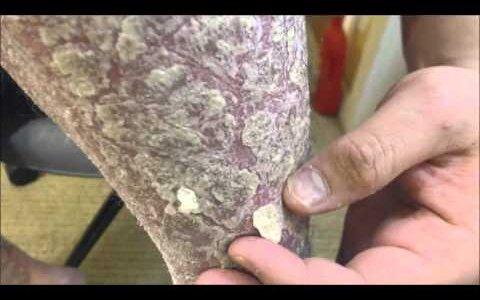 【動画】うろこ状になった皮膚をナイフで落としていく【乾癬】