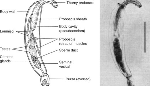 ダンゴムシをゾンビ化させる寄生虫プラギオリンクス