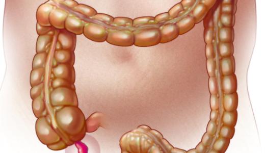 盲腸(虫垂炎)になると切られる虫垂には善玉菌を腸に送るという役割がある