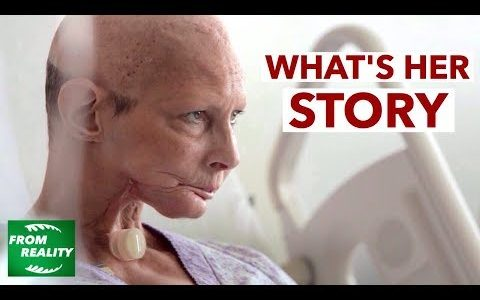 たばこの吸いすぎ(おそらく発癌)によって喉頭全摘出した女性が訴える禁煙の勧め