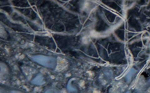 シロアリの腸内を顕微鏡観察してみると無数の単細胞微生物が存在していた