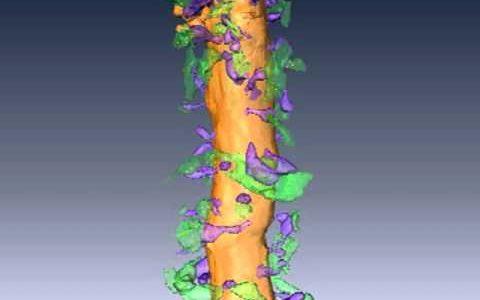 3次元で観察できる電子顕微鏡。神経細胞を超極薄にスライスして撮影して並べてみた