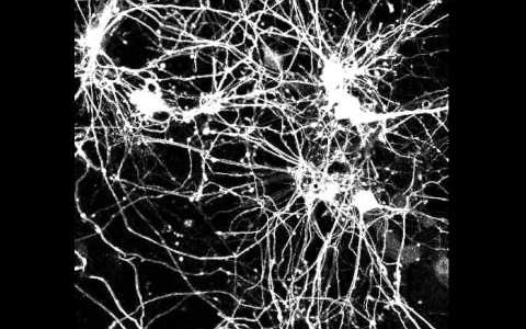 神経細胞が軸索をうにゃうにゃ伸ばしてシナプスを形成する様子を観察してみた