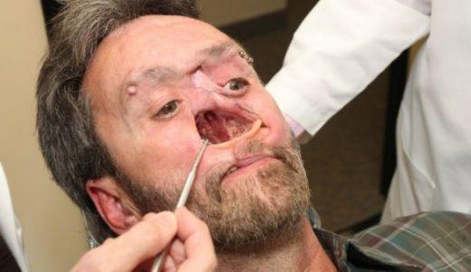 癌による外科手術のために顔面の中心部を失ってしまい穴が開いたままの男性の映像