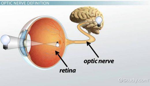 【Q&A】視神経でも卒中が起こるの?