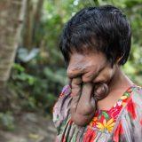 顔面が難骨肉腫によって覆われた女性が手術によって治療を試みた