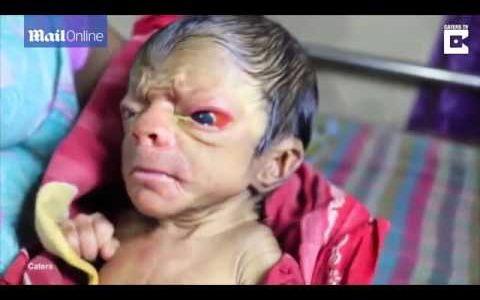 早老症の赤ん坊が地域の慣習で神聖視されてニュースになる