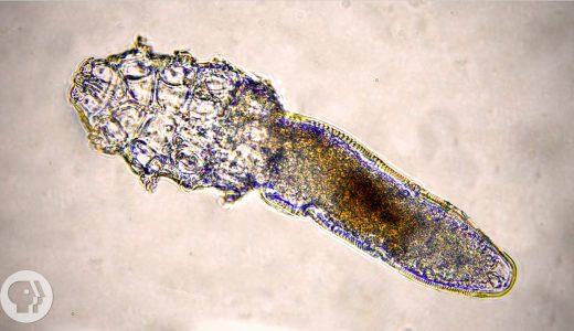 あなたの顔にもいる!!ニキビダニを顕微鏡で観察した動画