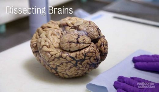 【閲覧注意】医学の発展を目的としてヒトの脳を解剖してみた