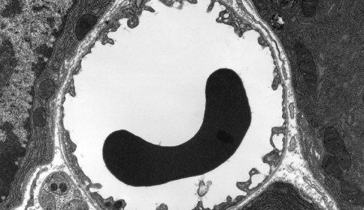 赤血球は細胞小器官を殆ど持たない