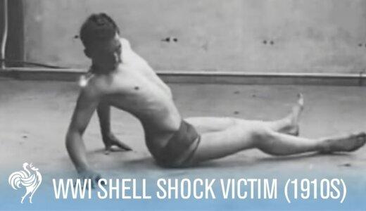【閲覧注意】第一次世界大戦の兵士の戦闘ストレス反応(シェルショック)が悲惨すぎる