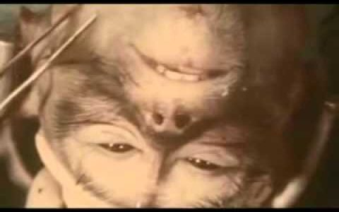 【閲覧注意】ロバート・ホワイト医師のサルの頭部移植実験が倫理的にヤバすぎる