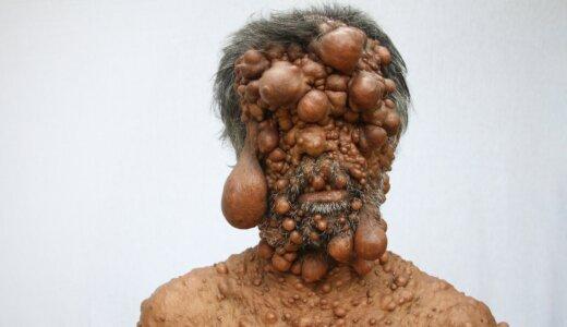 【神経線維腫】全身が無数の腫瘍に覆われて失明の危機にある男性