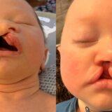 【動画】唇が裂けて生まれてきた赤ちゃん【口唇裂】