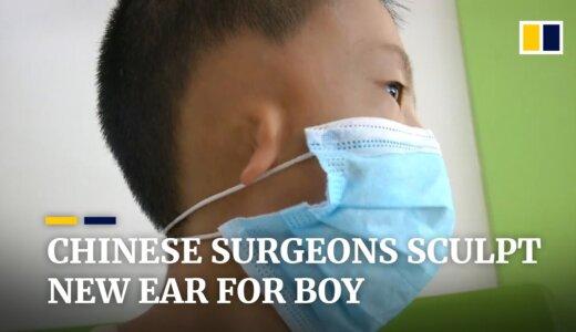 【動画】生まれつきの耳介奇形で耳が非常に小さい少年