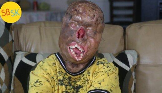 【動画】重度の火傷を負っても奇跡的に生存している少年