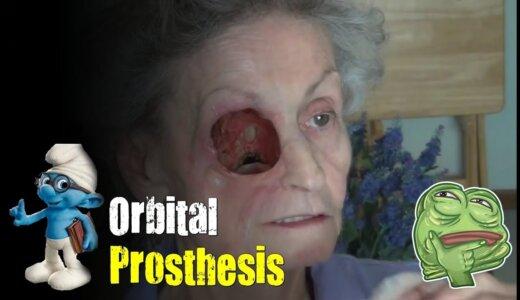 【動画】顔面の一部を失ってしまった人が超リアルな義眼を装着する