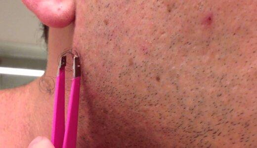 【閲覧注意】世界で4000万再生された超長い埋没毛を抜く映像【動画】