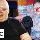 【動画】表皮のただれがおさまらない、遺伝性の病気「表皮水泡症」の人々