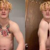 【動画】鎖骨がなく生まれてきた男性、左右の肩と肩がくっつく!!